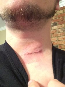 Perspective Through Pain: Mark Brunke's neck surgery story