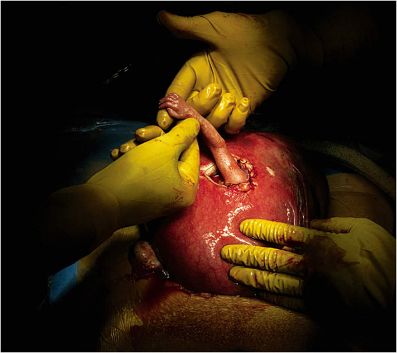 The photo of a 24-week-old fetus during an in-utero surgery. Photo by Max Aguilera-Hellweg for LIFE.