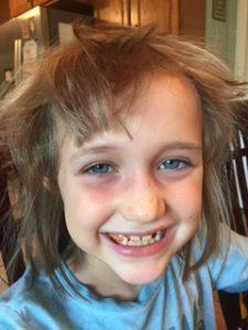 Seven-year-old girl 24 hours after starting antibiotics.